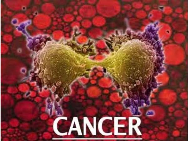 Rák? Kár… Hogyan csökkentheti a rák kialakulásának sanszát? 1.