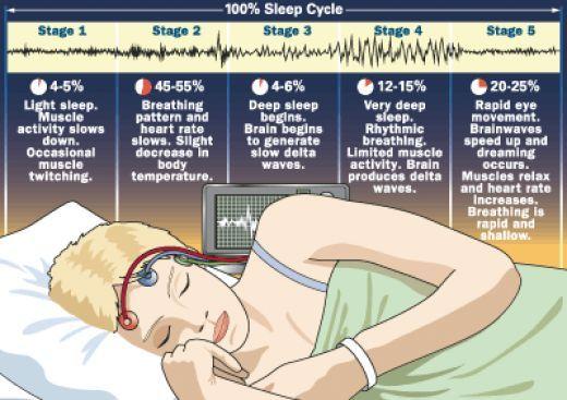 A minőségi alvás tudományai - poliszomnográfia