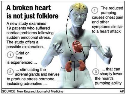 A stressz a hirtelen szívhalál fő oka - Dr. Kopácsi László pszichiáter Győr